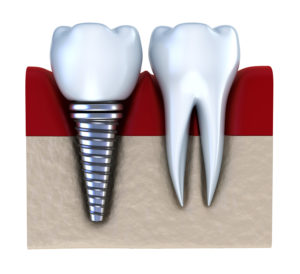 Zahnimplantate Funktion